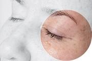 Eye Filler Mask от Dermaheal